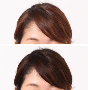 髪色の修整事例