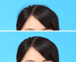 髪の毛のハネ修整事例