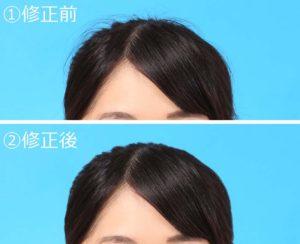髪ハネ修整事例