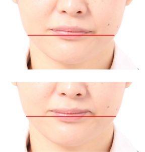 口角の比較