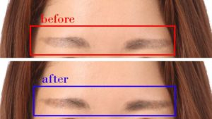 眉毛の濃さ修整事例