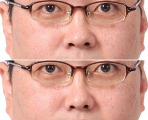 鼻筋の修整事例