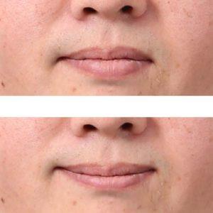 唇の修整事例