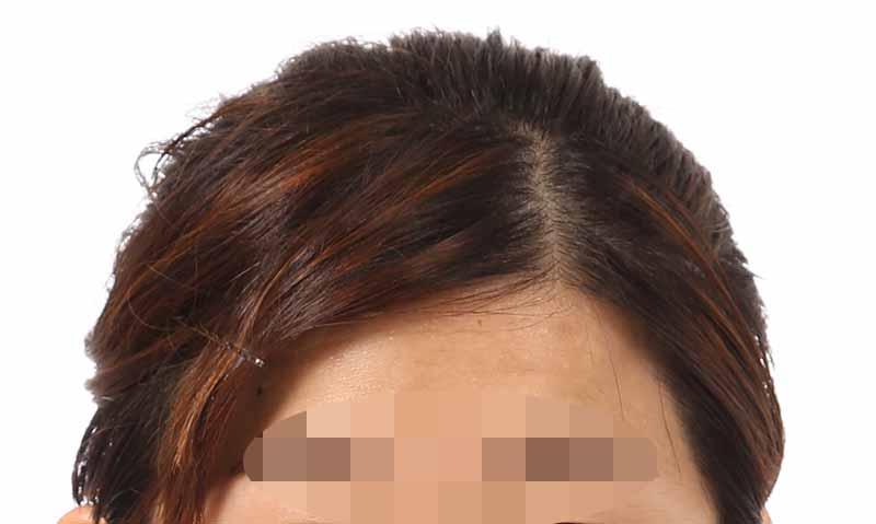 証明写真の修整事例(メッシュ状の髪色修整)