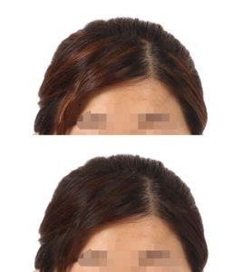 メッシュ状髪の毛修整事例